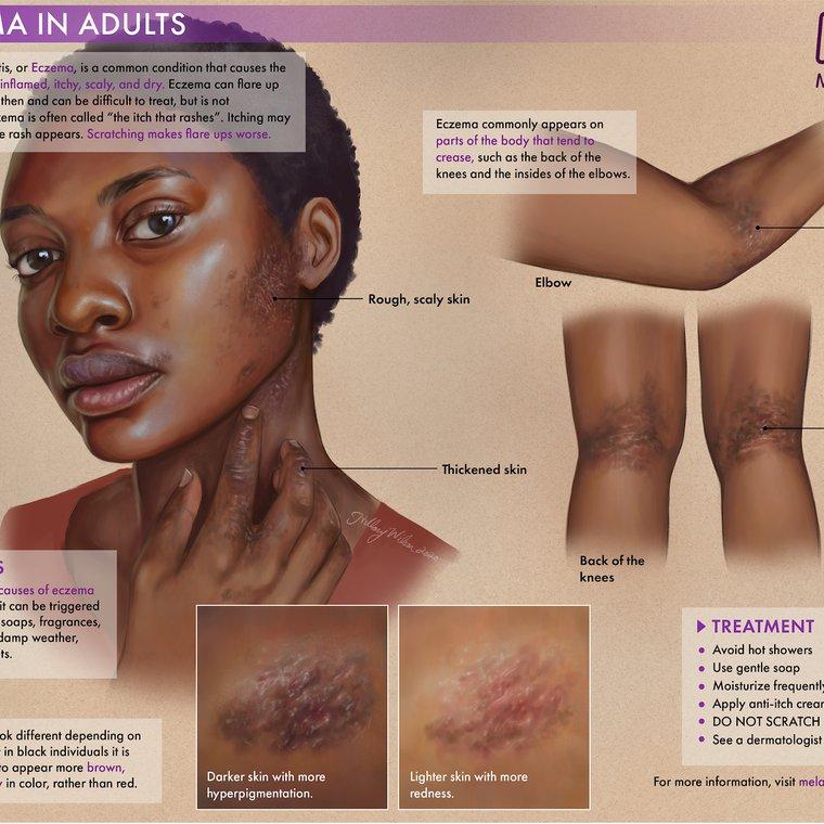Eczema-01.jpg